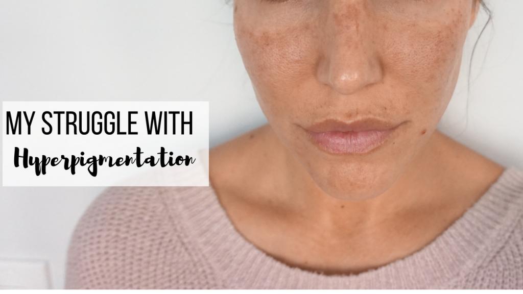 my struggle with hyperpigmentation