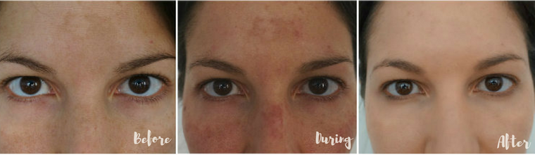 Before & After: Laser Treatments For Hyperpigmentation